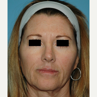 55-64 year old woman treated with Microneedling before 2882799