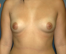 Breast Implants before 3545044