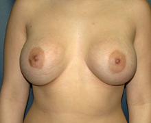 Breast Implants after 3545044