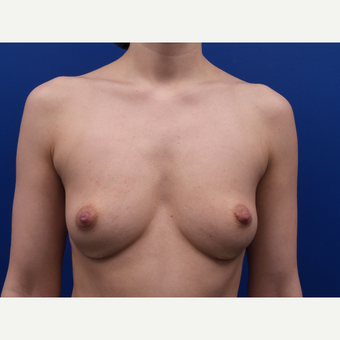 35-44 year old woman treated with Fat Transfer before 3522581