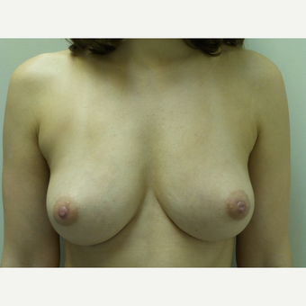 35-44 year old woman treated with Fat Transfer after 3522581