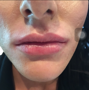 25-34 year old woman treated with Lip Augmentation after 3502186