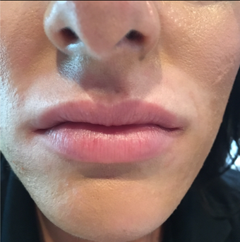 25-34 year old woman treated with Lip Augmentation before 3502186