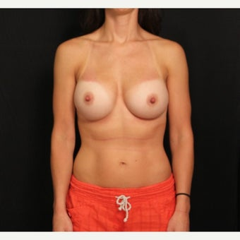 35-44 year old woman treated with Mentor Breast Implants after 2360711