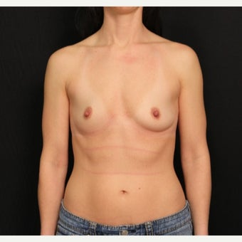 35-44 year old woman treated with Mentor Breast Implants before 2360711