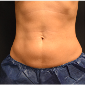 35-44 year old woman treated with CoolSculpting after 3135220