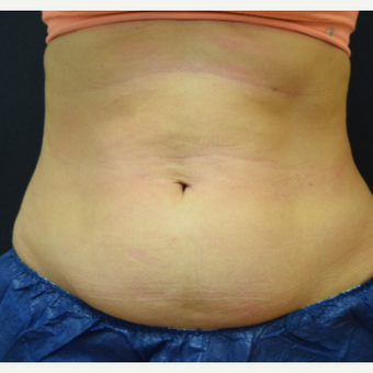 35-44 year old woman treated with CoolSculpting before 3135220
