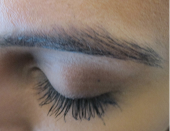 Latisse - Eyelash Growth after 1305552