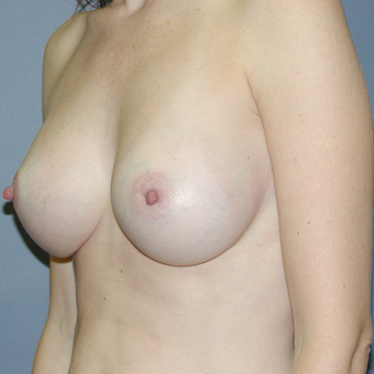 37 year old woman treated with Breast Augmentation after 3042701