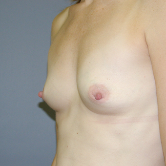 37 year old woman treated with Breast Augmentation before 3042701