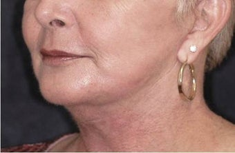 Chin implant, SMAS to lips, facelift