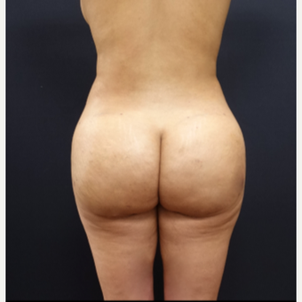 25-34 year old woman treated with Butt Lift after 3267047