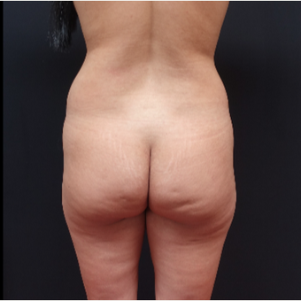 25-34 year old woman treated with Butt Lift before 3267047