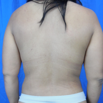 35-44 year old woman treated with Liposuction after 3188253