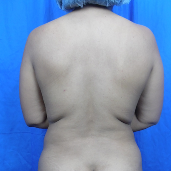 35-44 year old woman treated with Liposuction before 3188253
