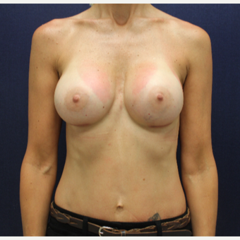 45-54 year old woman treated with Breast Augmentation after 3146478