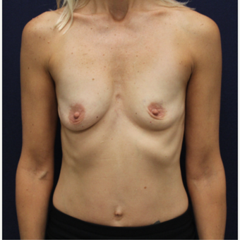 45-54 year old woman treated with Breast Augmentation before 3146478