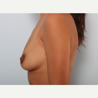 Breast Augmentation before 3425073