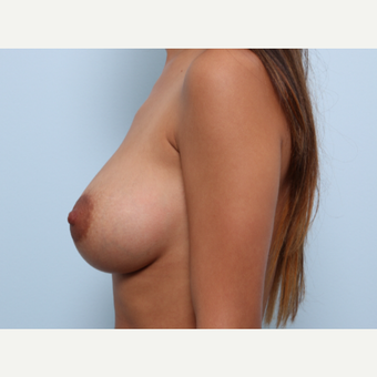 Breast Augmentation after 3425073
