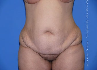 35-44 year old woman treated with Tummy Tuck before 2999059