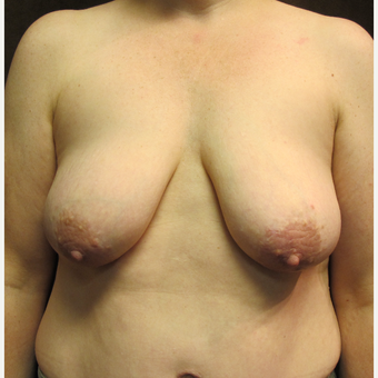 45-54 year old woman treated with Breast Lift before 3036153