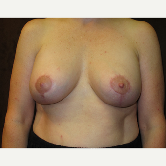 45-54 year old woman treated with Breast Lift after 3036153