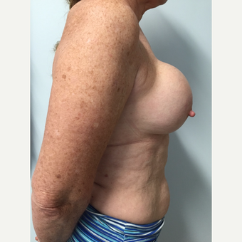 58 year old woman treated with Breast Implant Revision before 3585985