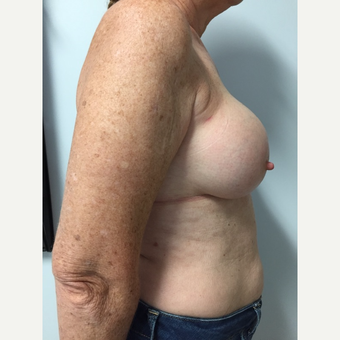 58 year old woman treated with Breast Implant Revision after 3585985