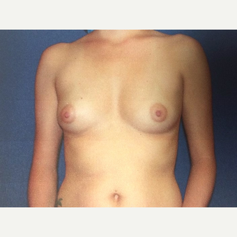 35-44 year old woman treated with Breast Augmentation before 3019067