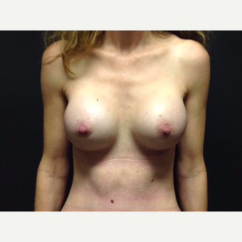 35-44 year old woman treated with Breast Augmentation after 3019067