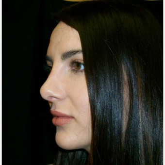25-34 year old woman treated with Rhinoplasty after 3617115
