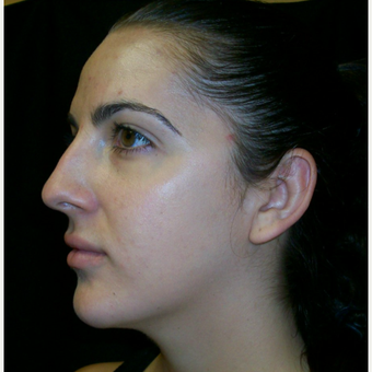 25-34 year old woman treated with Rhinoplasty before 3617115
