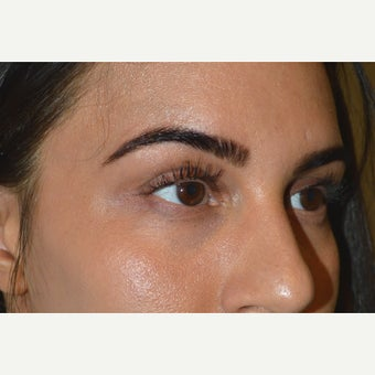 A young female, who underwent upper eyelid/brow filler injection to correct inherited hollowness. after 2029958