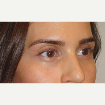 A young female, who underwent upper eyelid/brow filler injection to correct inherited hollowness. before 2029958