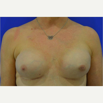 50 year old woman treated with nipple-sparing mastectomies and implant-based Breast Reconstruction after 3724407