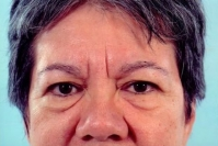 Eyelid Surgery before 3446340
