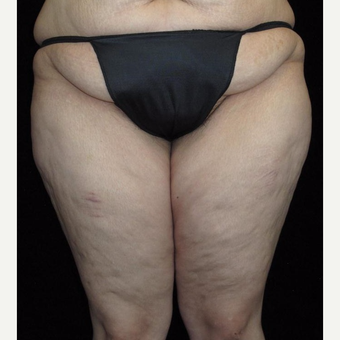 25-34 year old woman treated with Thigh Lift before 3251759