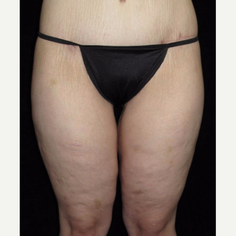 25-34 year old woman treated with Thigh Lift after 3251759