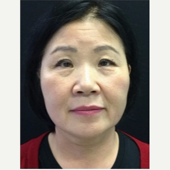 55-64 year old woman treated with Ultherapy after 3179937