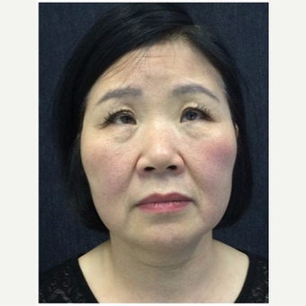 55-64 year old woman treated with Ultherapy before 3179937