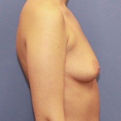 25-34 year old woman treated with Sientra Breast Implants before 1858267