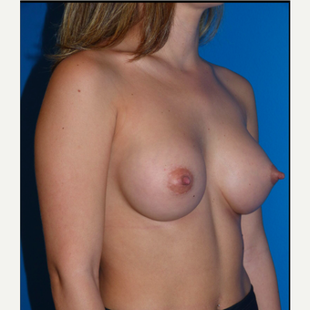 Breast Implants after 3807199