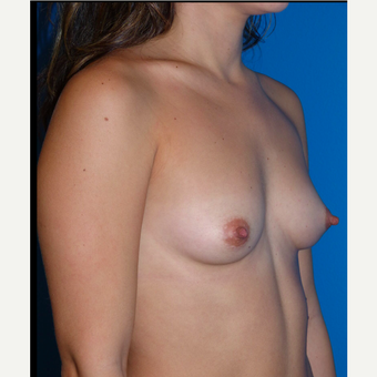 Breast Implants before 3807199
