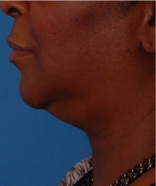 55-64 year old woman treated with Kybella before 3009656