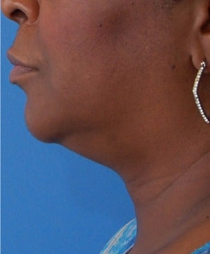 55-64 year old woman treated with Kybella after 3009656