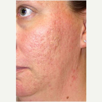 Woman treated with CO2 Laser before 2661181
