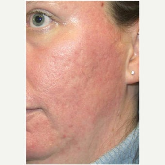 Woman treated with CO2 Laser after 2661181