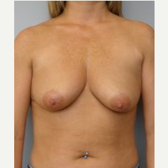 35-44 year old woman treated with Breast Lift with Implants before 3122357