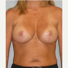 35-44 year old woman treated with Breast Lift with Implants after 3122357