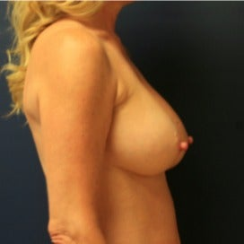 Breast Augmentation with Tear Drop Implants after 1891403